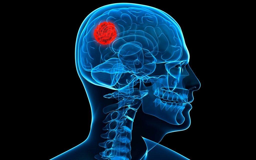 Medidas para reducir el riesgo de tumores cerebrales por el empleo de teléfonos celulares